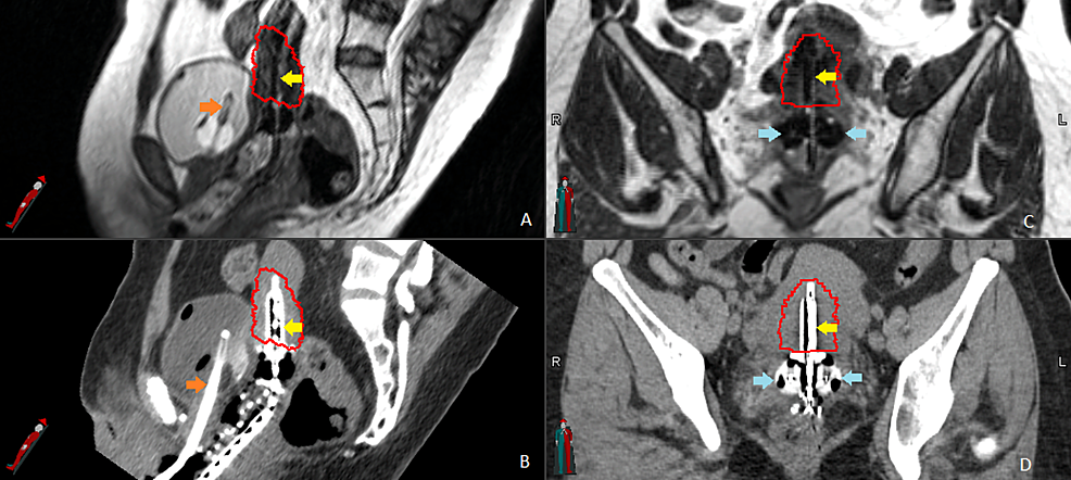 Magnetic-resonance-guided-brachytherapy.