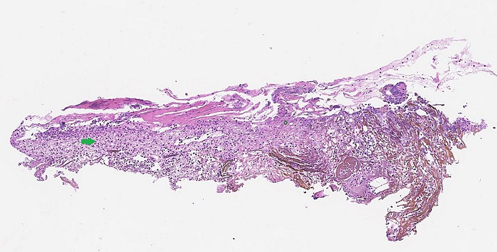 Haemotoxylin-and-eosin-stain-of-the-bronchial-biopsy-showing-epithelial-erosion-and-necrosis-(green-arrow)
