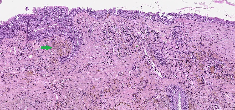 Haemotoxylin-and-eosin-stain-of-the-bronchial-biopsy-showing-presence-of-unstained-iron-deposition-(green-arrow)