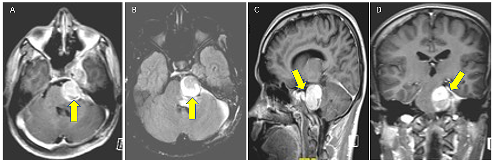 Magnetic-resonance-images-(A)-T1-Gado,-(B)-T2-Flair,-(C)-T1-weighted-sagittal,-and-(D)-T1-weighted-coronal-lobulated-dumbbell-shaped-extra-axial-mass-on-the-left-of-the-posterior-fossa-along-the-left-trigeminal-nerve,-widening-of-Meckel's-cave-and-displacing-the-cavernous-sinus-with-indentation-of-regional-pons.