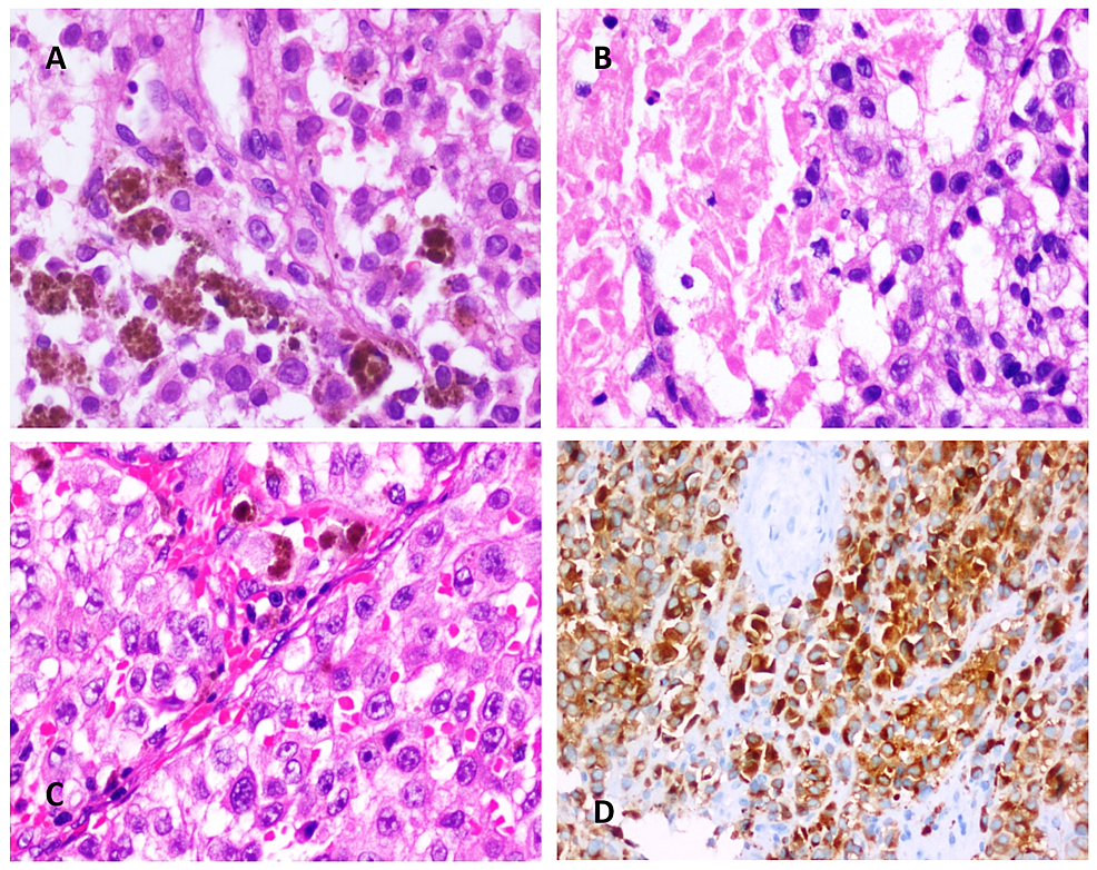 (A)-Hematoxylin-and-Eosin-(H&E)-stained-sections-show-sheets-of-medium-sized-polygonal-cells-with-moderately-pleomorphic-nuclei-containing-dispersed-chromatin,-macronucleoli,-and-moderate-amounts-of-eosinophilic-cytoplasm.-Few-cells-contain-intracytoplasmic-melanin-pigment-(X400).-(B)-H&E-stained-sections-show-tumor-as-described-in-A-with-an-area-of-necrosis-(X400).-(C)-H&E-stained-sections-show-tumor-as-described-in-A-(X200).-(D)-Immunoperoxidase-staining-for-Melan-A-showing-diffuse-cytoplasmic-staining-in-tumor-cells-(X200).
