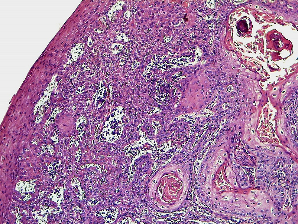 Invasive-keratinizing-squamous-cell-carcinoma-developing-from-the-epidermis-(HE-x-100)