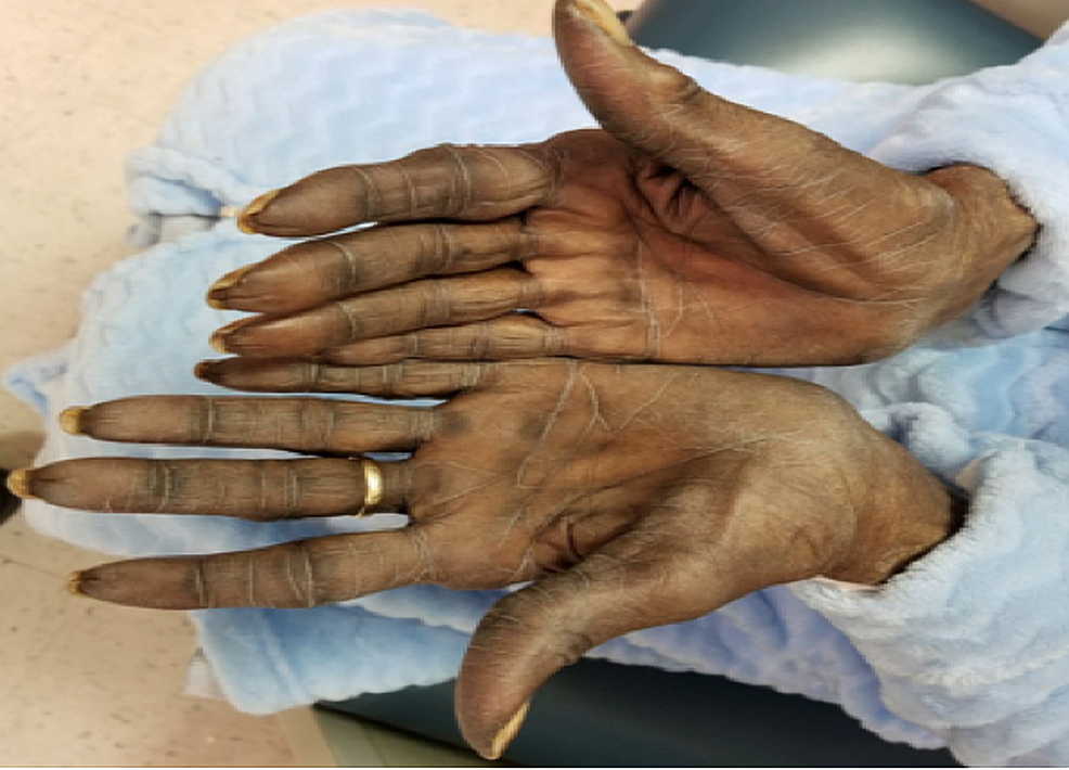 Physical-exam-of-the-hands-showing-dry-skin-and-mild-discoloration,-two-weeks-after-initiating-capecitabine.