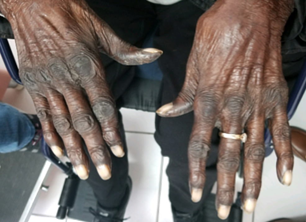 Physical-exam-of-the-hands-showing-markedly-increased-discoloration-of-the-dorsal-surface,-eight-weeks-after-the-initiation-of-capecitabine.
