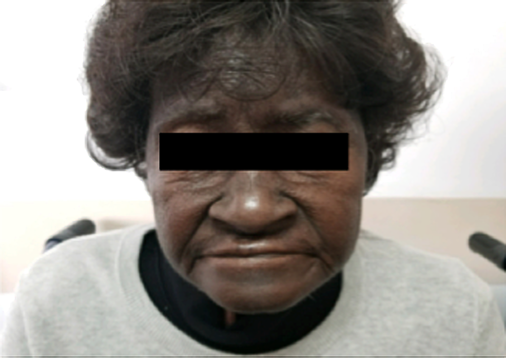 Picture-showing-marked-discoloration-of-the-forehead-and-the-skin-surrounding-the-nose,-several-weeks-after-the-treatment-with-capecitabine.
