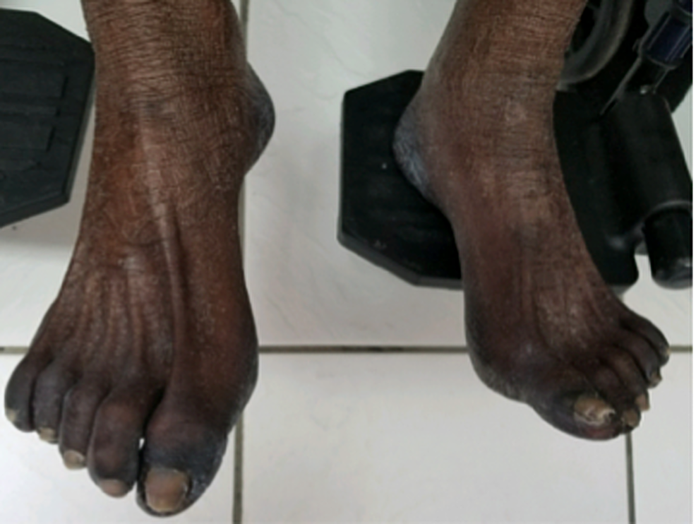 Physical-exam-of-the-feet-showing-marked-discoloration-of-the-soles-and-dorsal-surface.