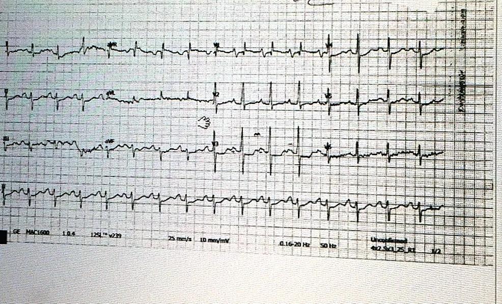 Twelve-lead-ECG-showing-septal-hypertrophy-V2,-3,-4,-bifid-P-wave-in-lead-II,-V3