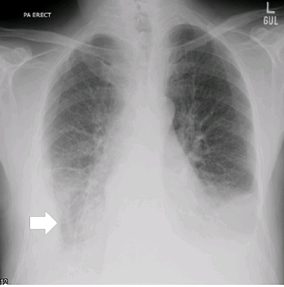 Image-showing-the-chest-X-ray