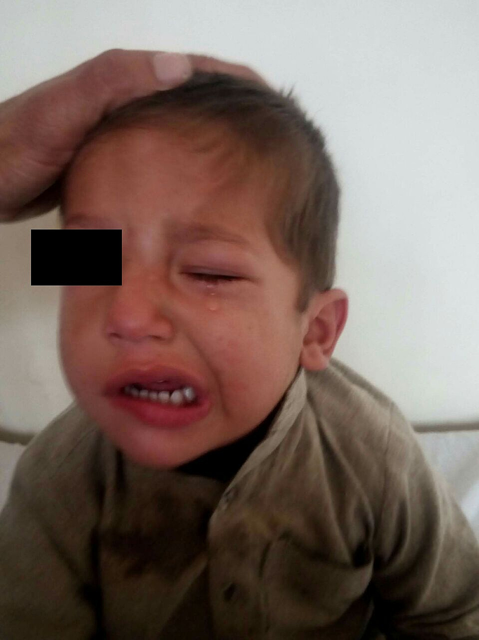 Three-year-old-male-presenting-with-left-hemifacial-Bell's-palsy.