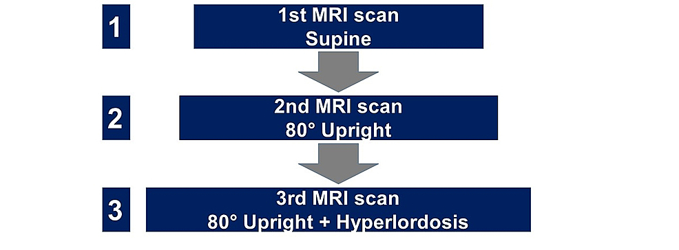 Flow-chart-illustrating-the-sequence-of-MRI-scans-in-different-positions.