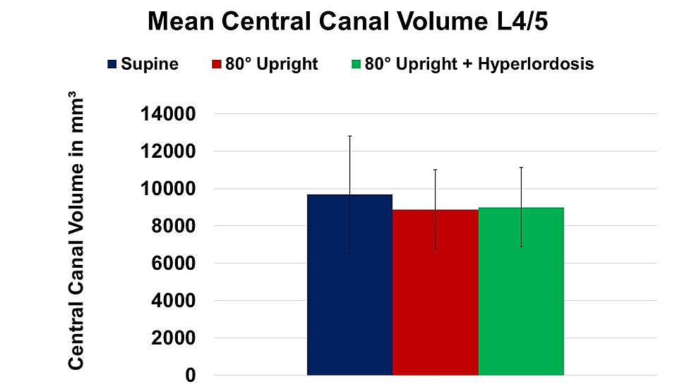 Change-of-mean-central-canal-volume-at-spinal-level-L4/5-in-supine,-80°-upright,-and-80°-upright-combined-with-hyperlordosis-position.