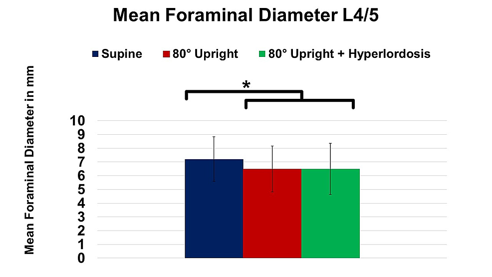Change-of-mean-foraminal-diameter-at-spinal-level-L4/5-in-supine,-80°-upright,-and-80°-upright-combined-with-hyperlordosis-position.