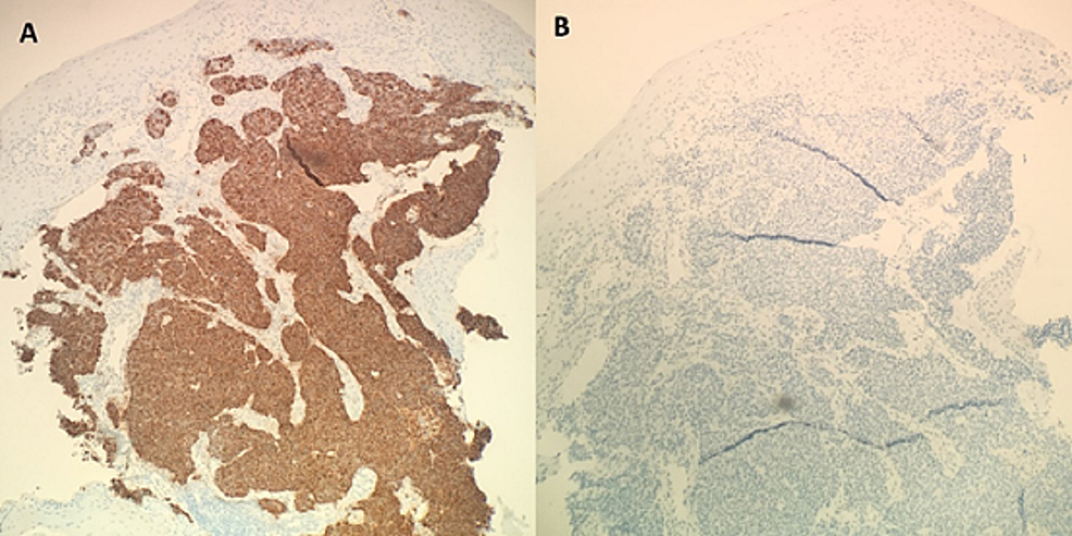 Histological-comparison-of-positive-immunostaining-with-chromogranin-(A)-and-negative-immunostaining-with-TTF-1-(B).