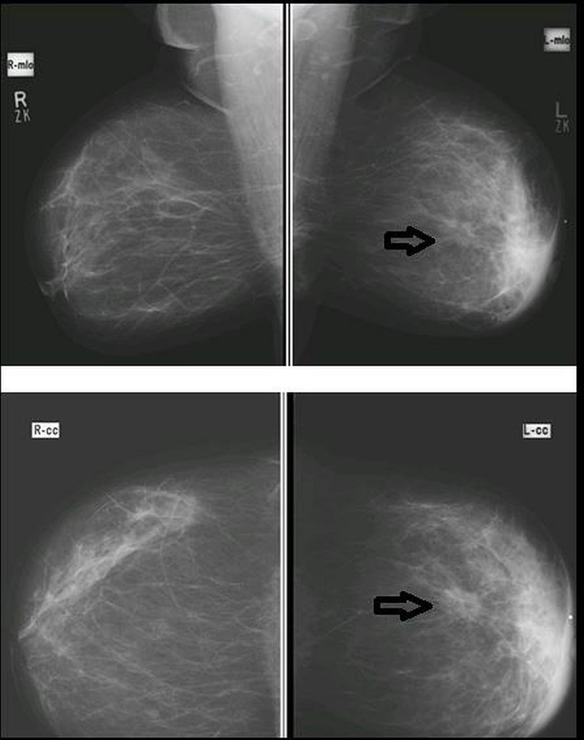 Cureus Diagnostic Accuracy Of Digital Mammography In The