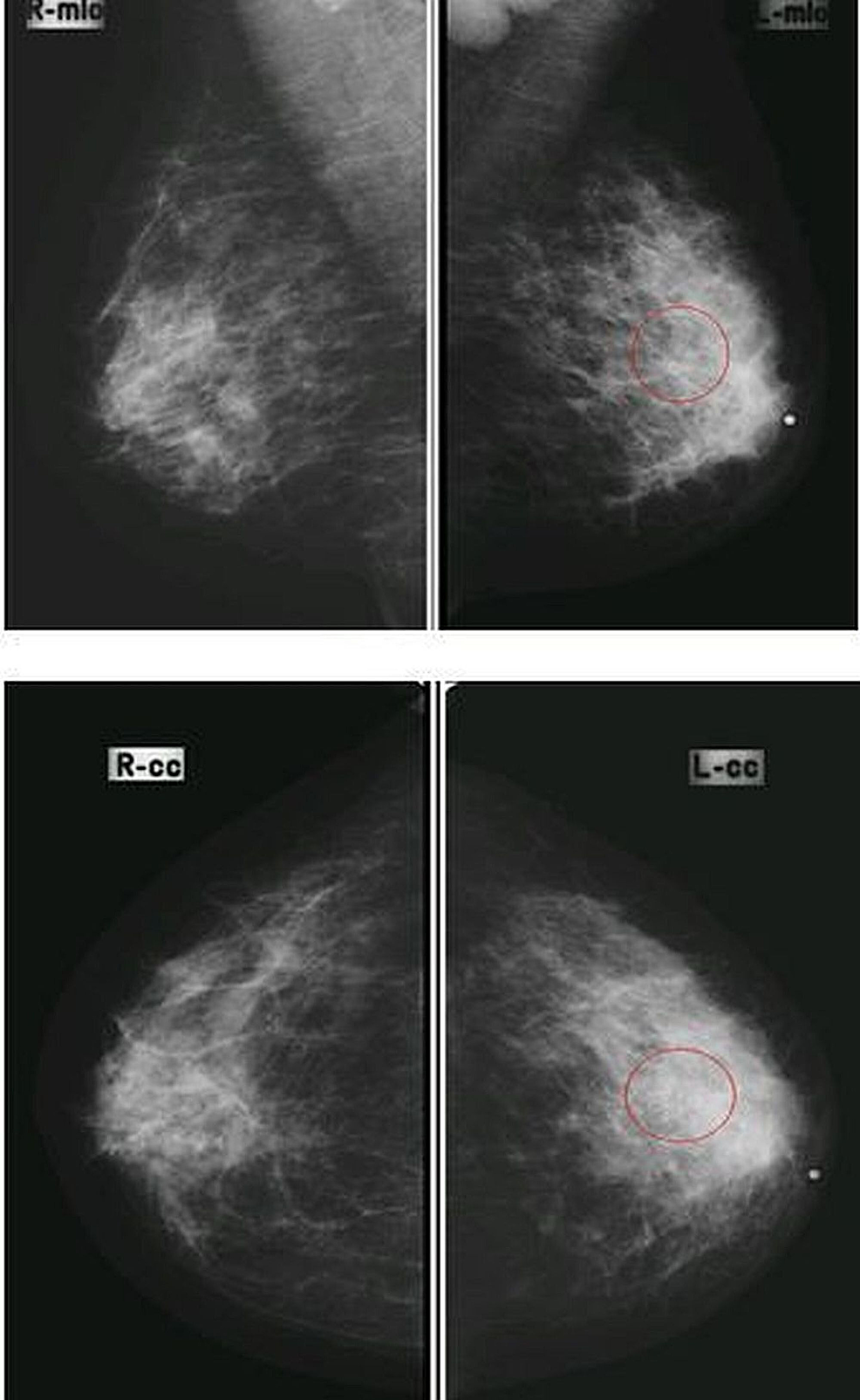 Mediolateral-oblique-(MLO)-and-cranial-caudal-(CC)-views-in-a-patient-having-pleomorphic-microcalcifications-in-the-upper-outer-quadrant-of-the-left-breast-with-enlarged-dense-axillary-lymph-nodes,-proven-to-be-breast-carcinoma-on-histopathology-(true-positive).