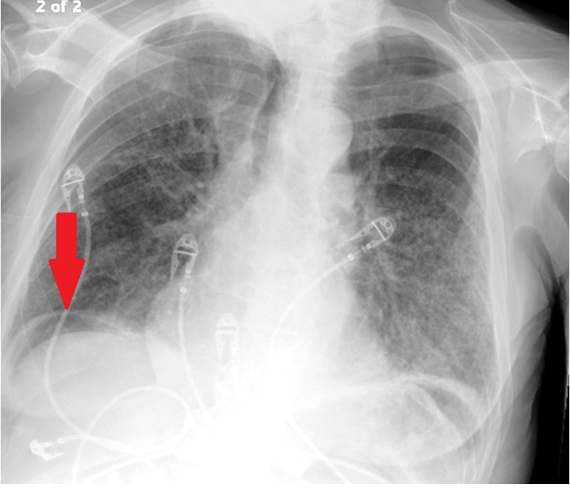 Cureus Non Surgical Pneumoperitoneum In The Setting Of Gram Negative Sepsis