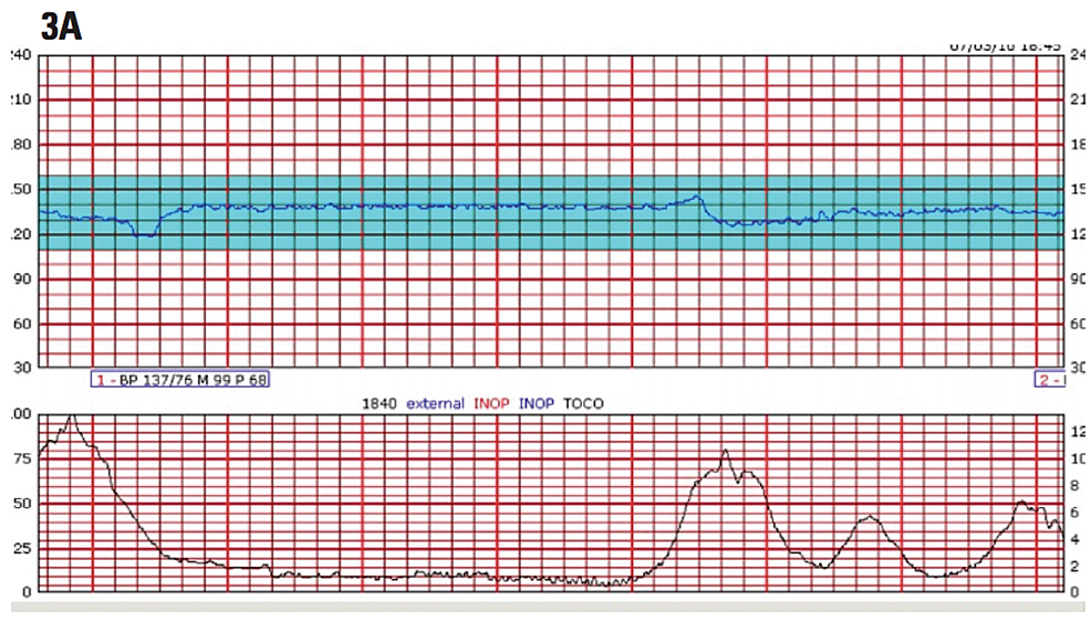 Example-of-fetal-heat-rate-exhibiting-late-decelerations.