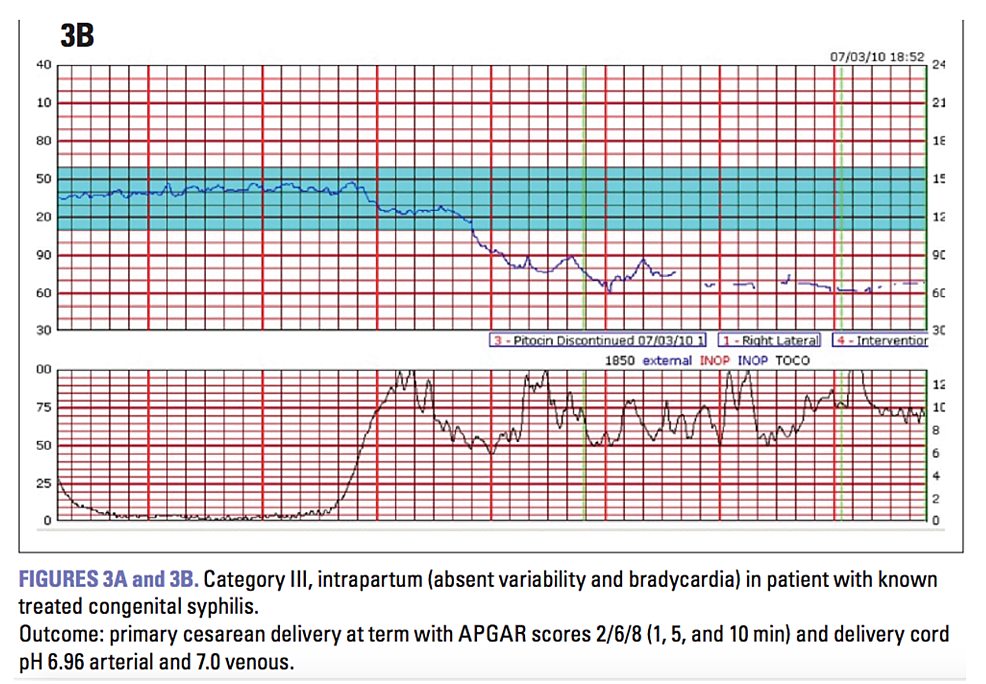 Example-of-Category-III-fetal-heart-rate-tracing.