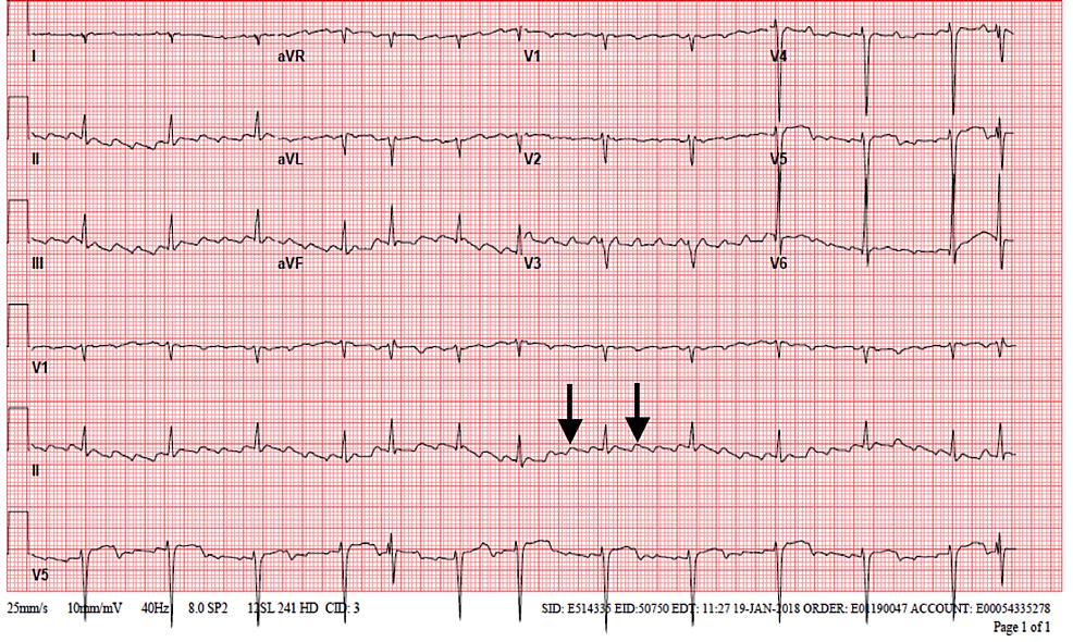 EKG-showing-atrial-flutter