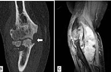 Article box 5d595660352811e8b4ced1051ca7f8db septic arthritis 1