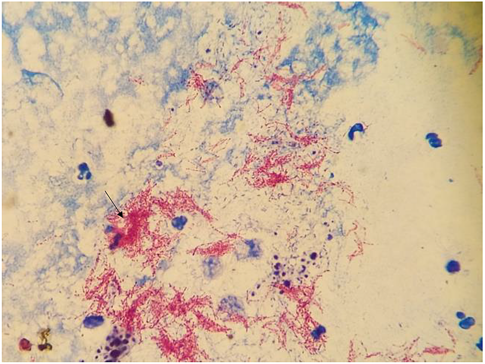 Carbolfuchsin-stain-from-a-direct-specimen-of-the-right-elbow-joint-showing-acid-fast-bacilli-(arrow)