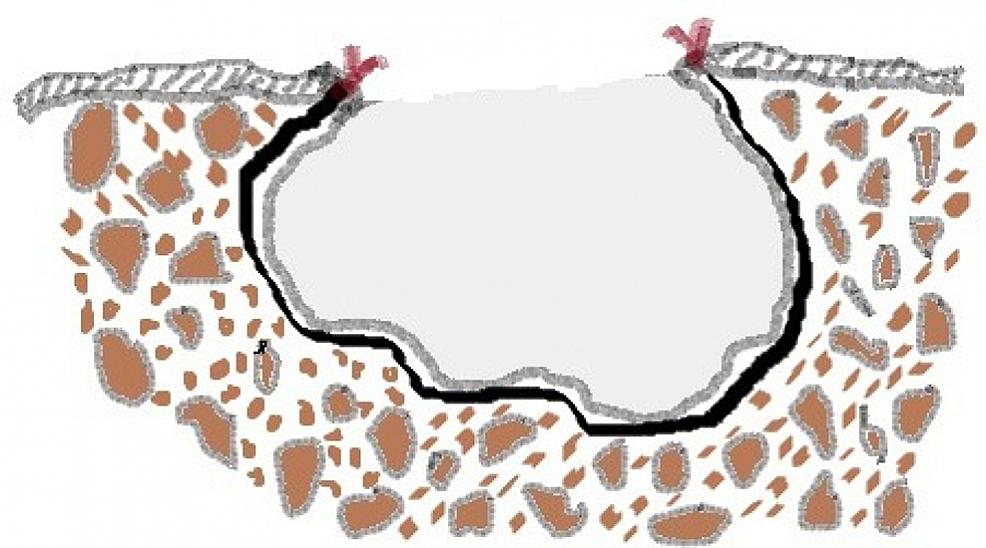 Illustration-of-the-marsupialization-procedure