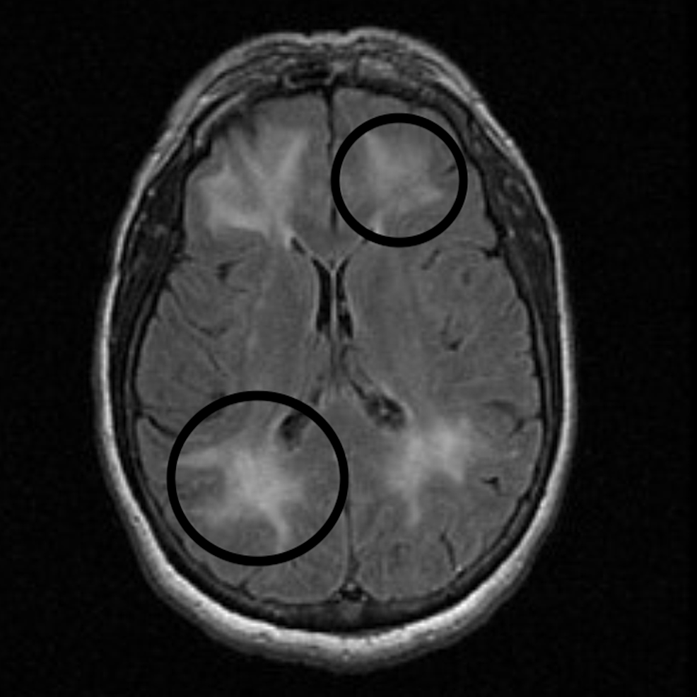 Magnetic-resonance-imaging-(MRI).