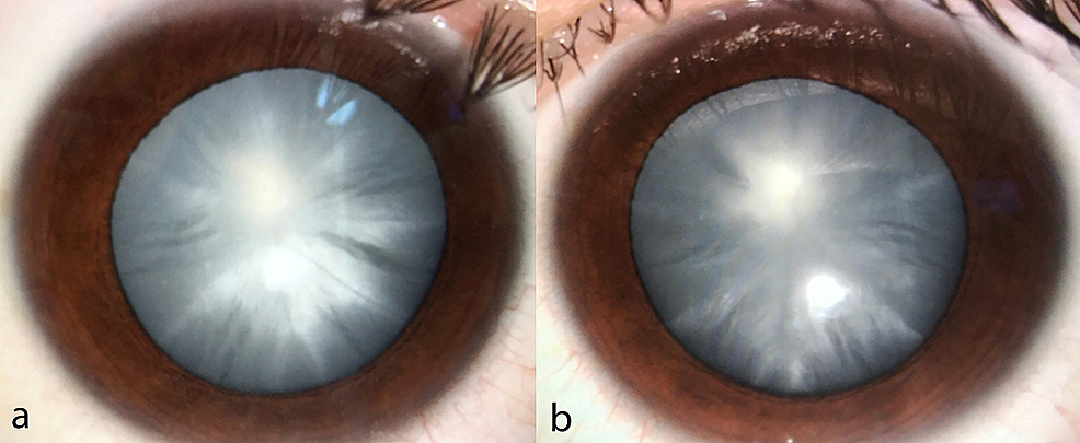 Anterior-segment-of-both-eyes