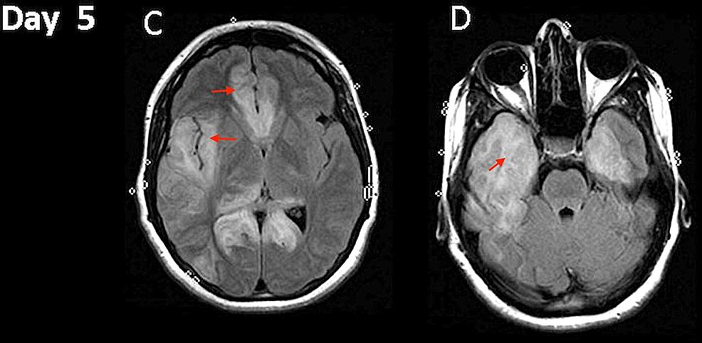 Magnetic-resonance-imaging-(MRI).