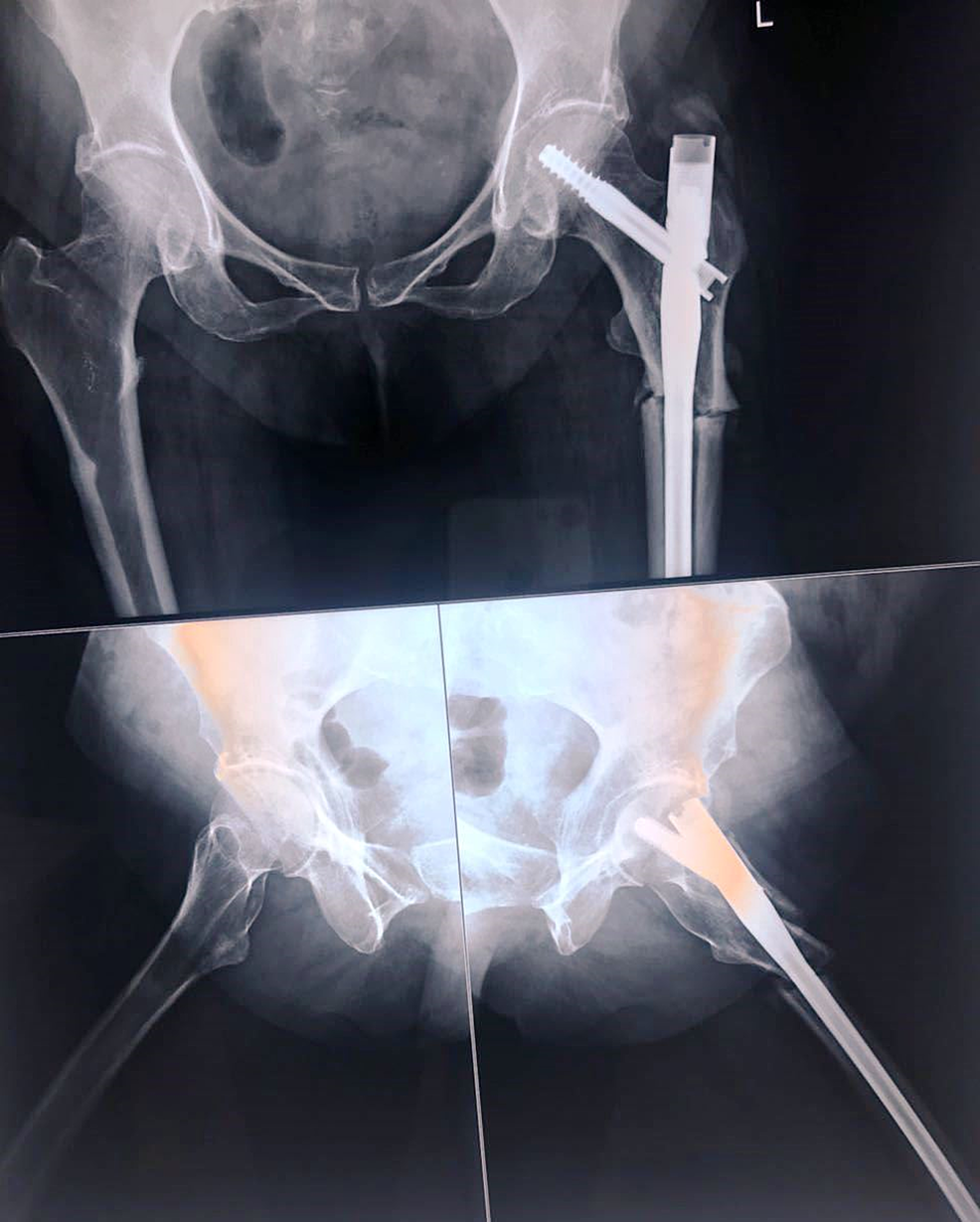 Immediate-postoperative-X-ray-showing-the-intramedullary-nail-in-situ.