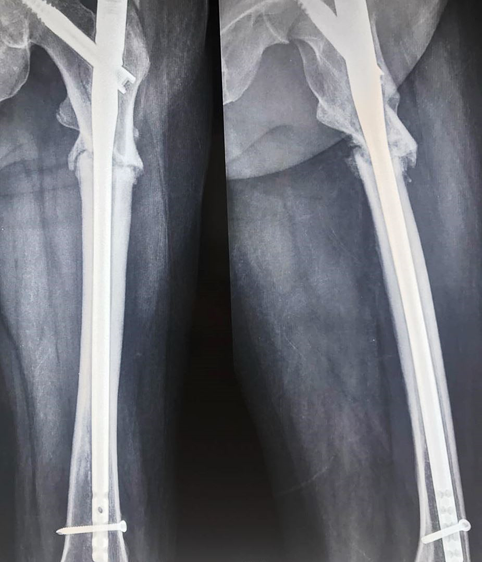 One-year-postoperative-X-ray-showing-nonunion-at-the-fracture-site.