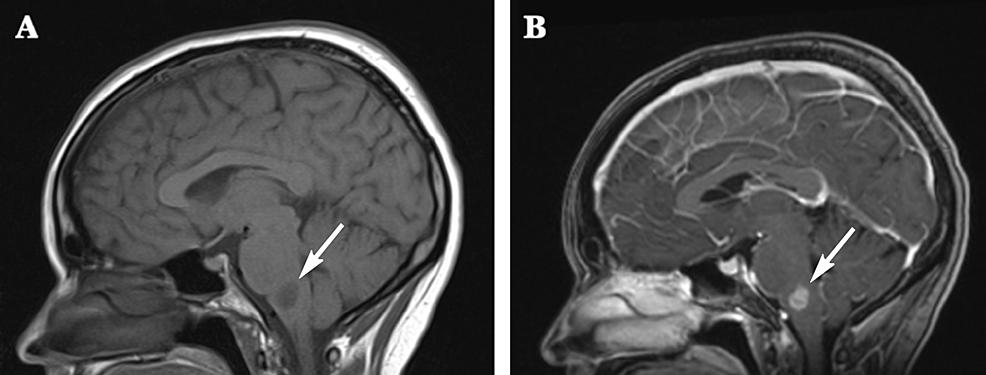 Magnetic-resonance-imaging-(MRI)-prior-to-biopsy.