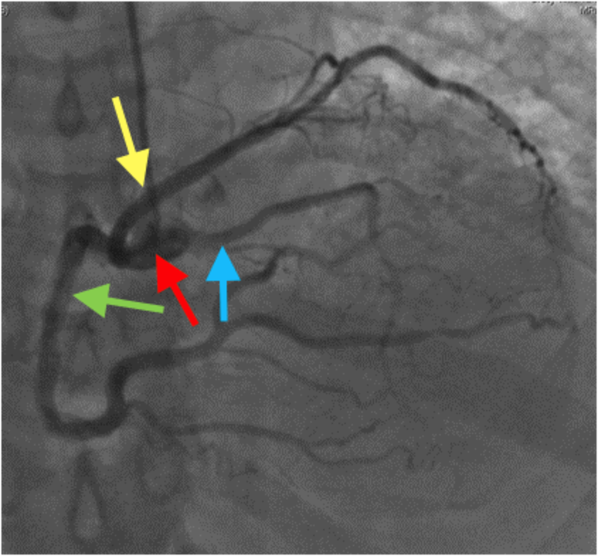 Cureus Anomalous Origin Of Coronary Arteries Arising From