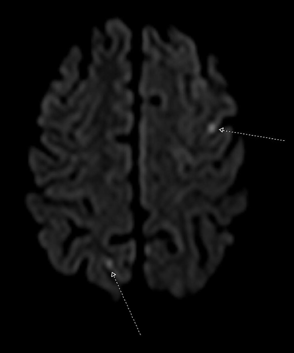 Magnetic-Resonance-Imaging-Brain-Noncontrast