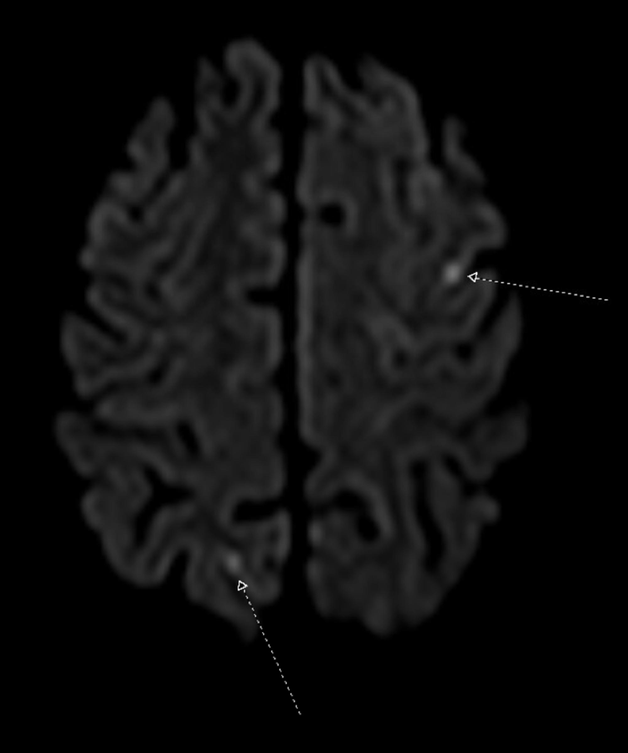 Cureus | Reversible Cerebral Vasoconstriction Disorder in a Patient