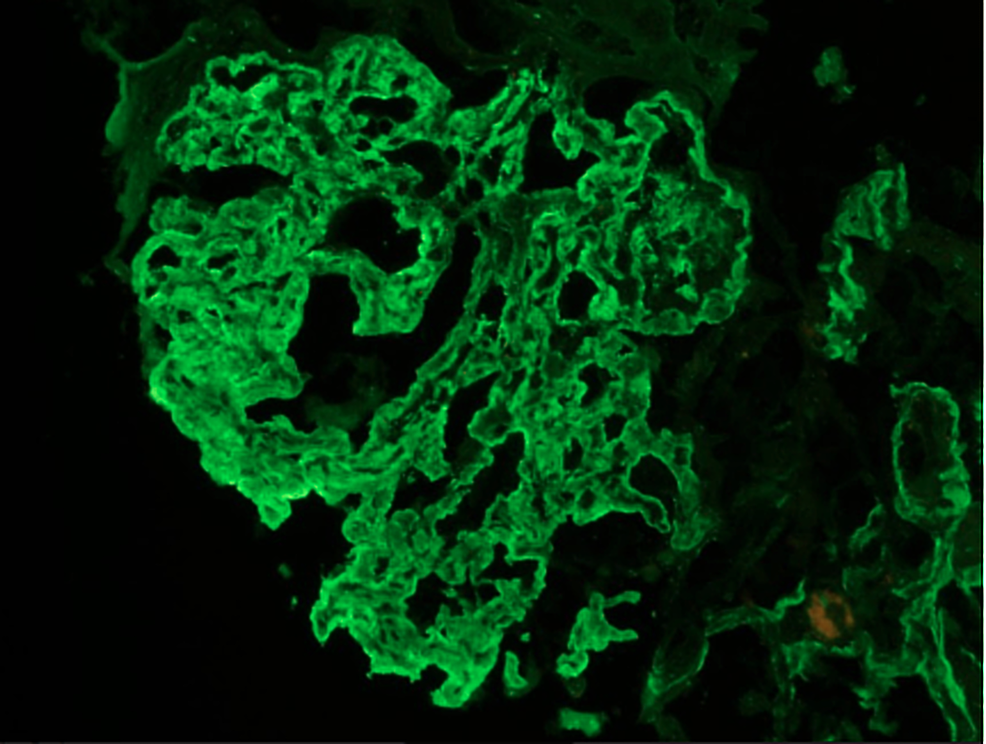 Immunofluorescence-image-of-the-patient-showing-positive-staining-with-immunoglobulin-G-(IgG)