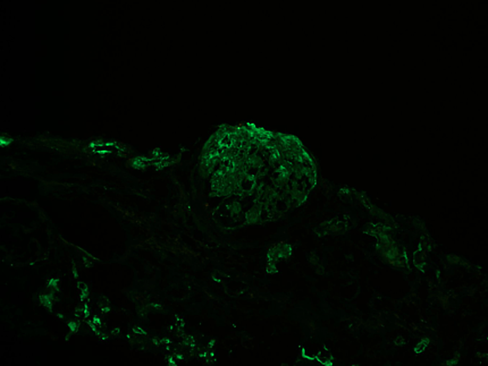 Immunofluorescence-image-of-the-patient-showing-2+-staining-for-C3