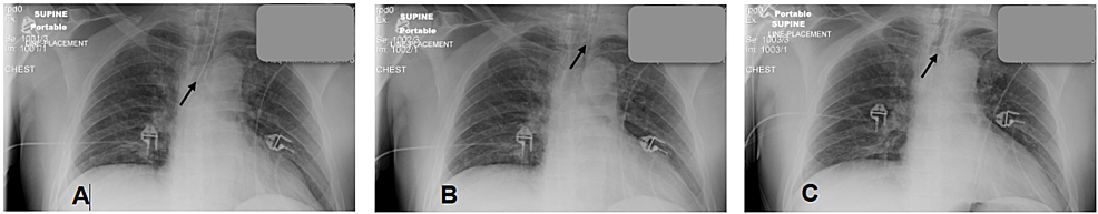 CXR-panel-demonstrating-the-position-of-the-endotracheal-tube