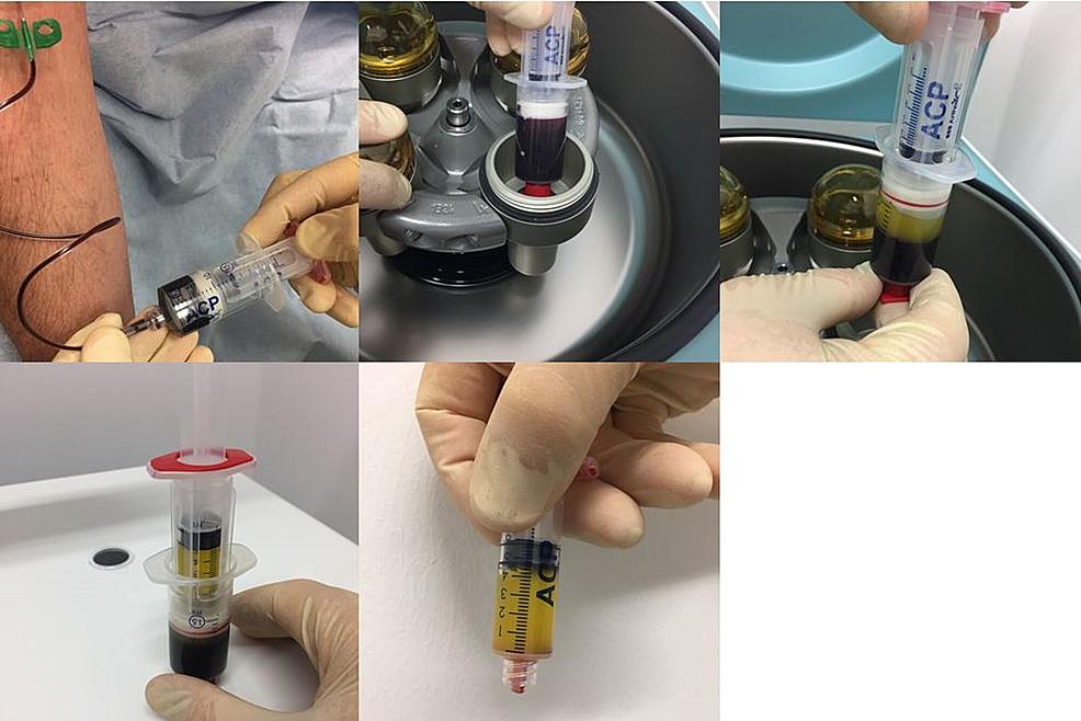Preparation-of-platelet-rich-plasma-(PRP).