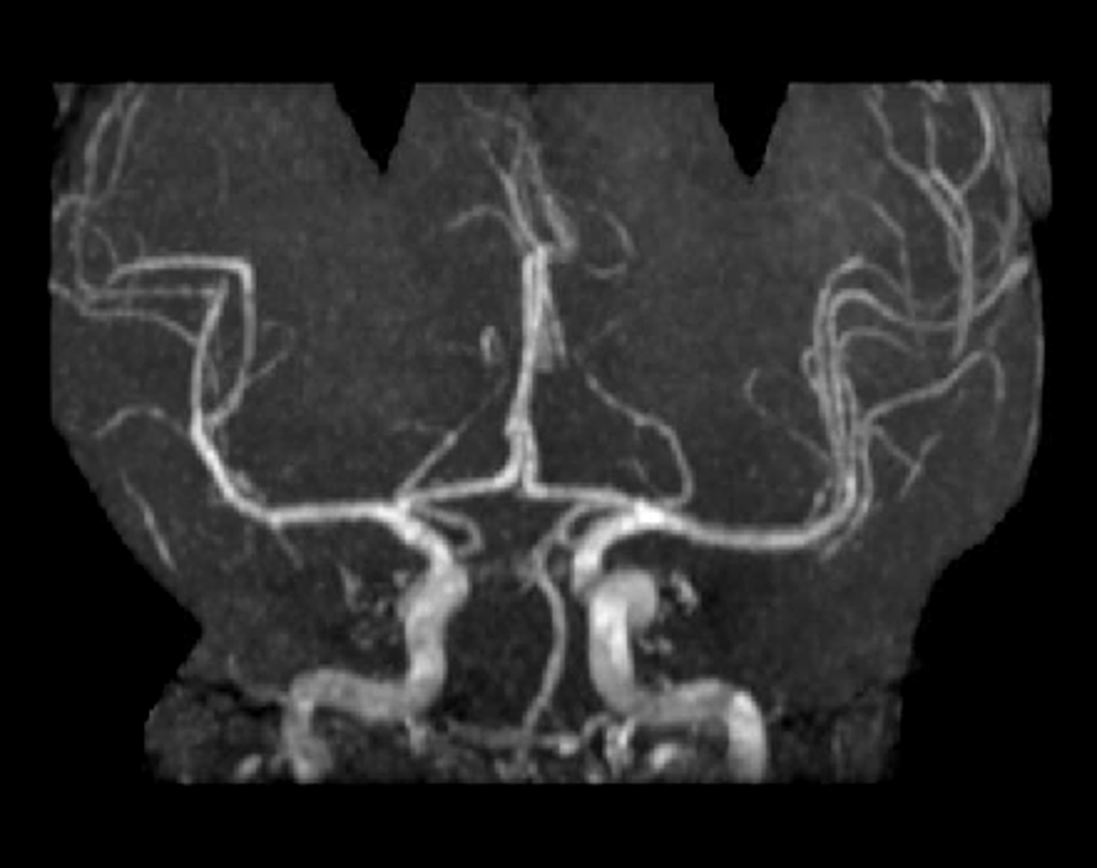 Magnetic-Resonance-Angiography