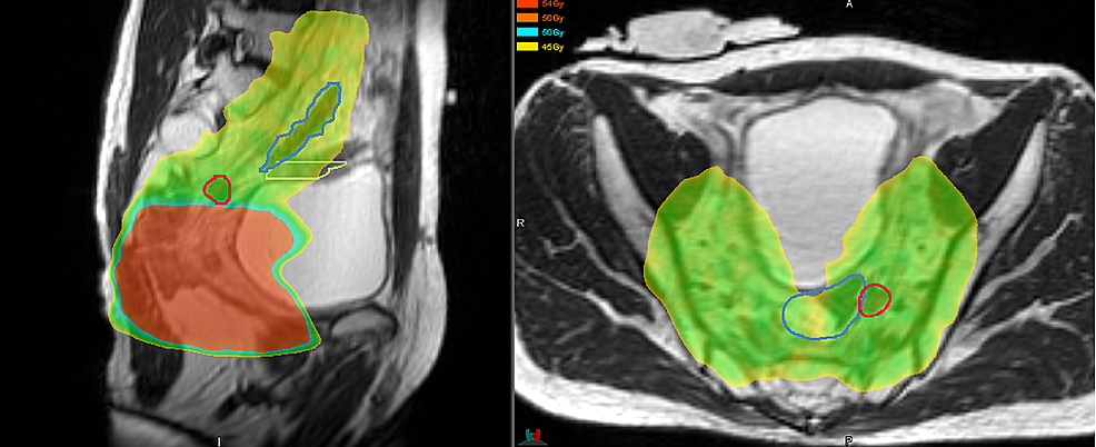Location-of-pelvic-recurrence-in-relation-to-prior-radiation-field.