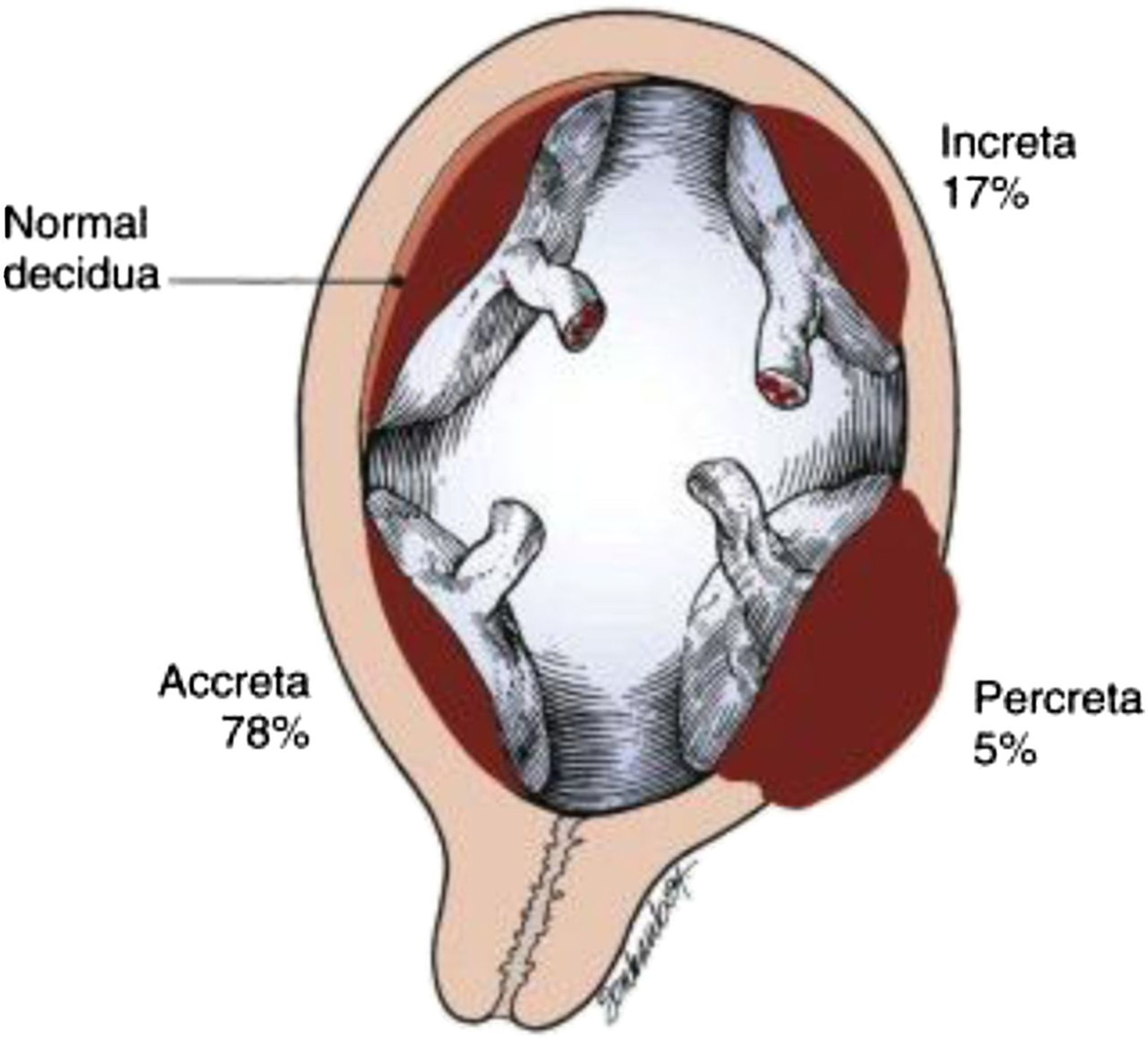 placenta acrreta Placenta accreta is an abnormally firm and deep attachment of the placenta to the uterine wall it's actually an umbrella term for three variants, depending on how deeply the placental cells invade: placenta accreta, placenta increta and placenta percreta.