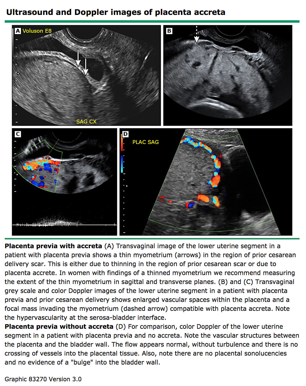 Ultrasound-and-Doppler-images-of-placenta-accreta.
