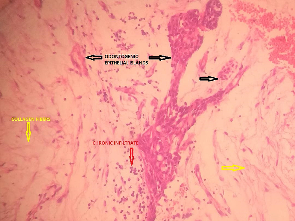 Section-from-the-histopathological-report-showing-nests-of-odontogenic-epithelium-in-between-fibroblastic-stroma