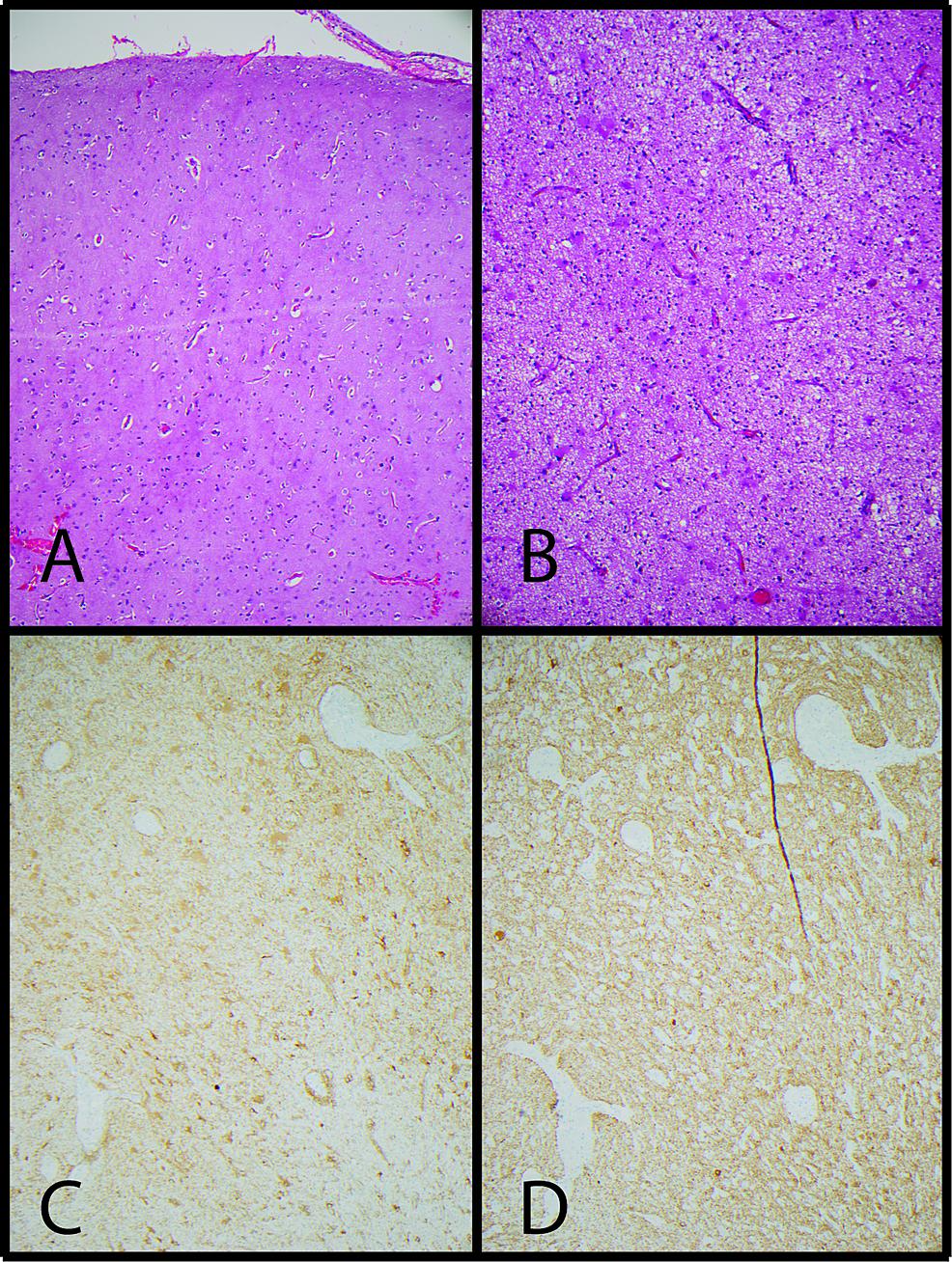 Focal-cortical-dysplasia,-Palmini-Type-IA.