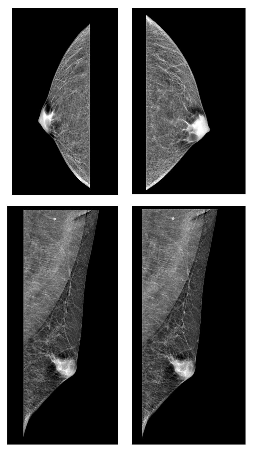 Digital-mammography