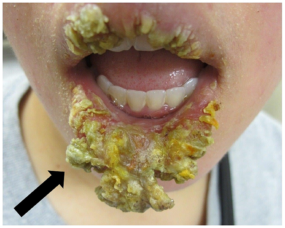 Physical-examination-findings-consistent-with-severe-exfoliative-cheilitis.