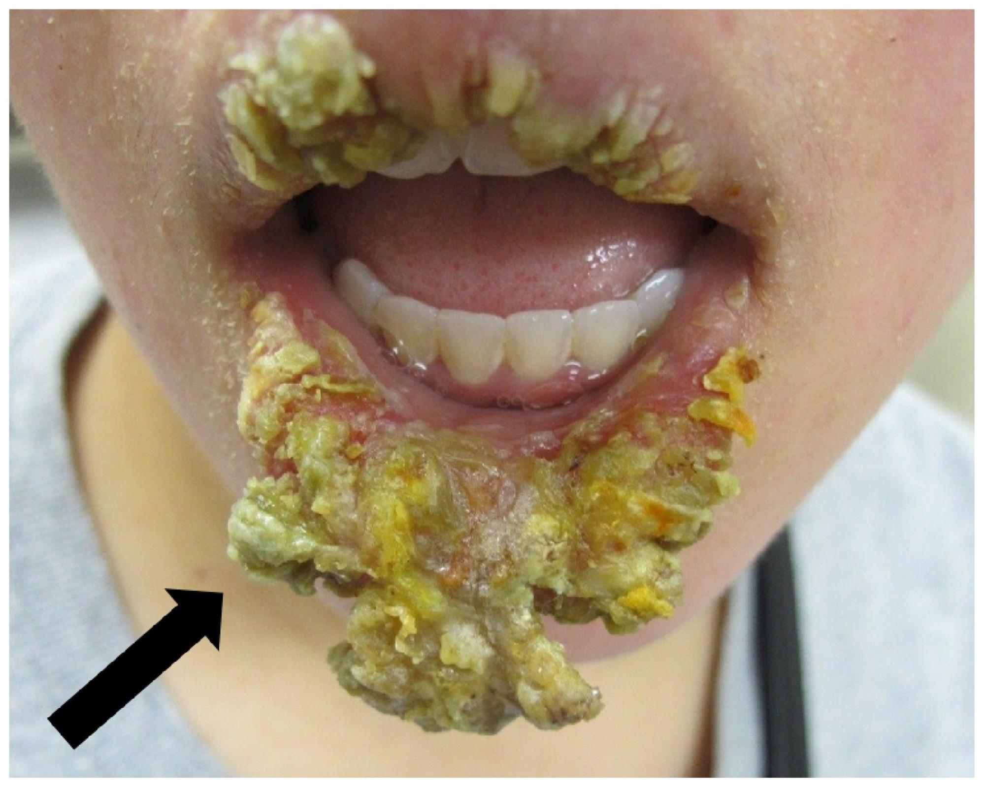 Cureus | Exfoliative Cheilitis as a Manifestation of
