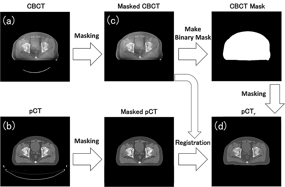 Workflow-of-the-preprocessing-to-create-a-pair-image-of-CBCT-and-pCT-to-be-learned-by-DCNN.