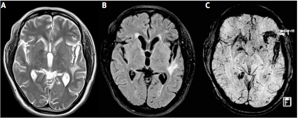 T2-weighted-MR-(A),-FLAIR-(B)-and-susceptibility-weighted-images-(C)-showing-bilateral-supratentorial-white-matter-lesions,-along-with-micro--and-macro-hemorrhages.-